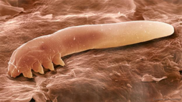 Sởn gai ốc với những loài rận ký sinh (Kỳ 1)